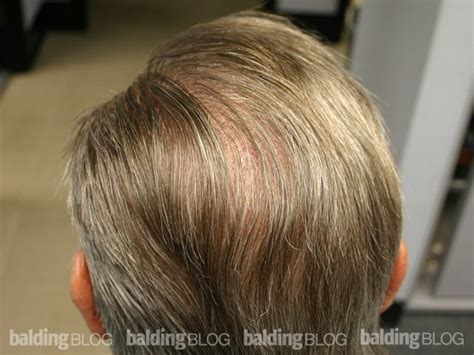balding hair crowns balding blog hairlines archives page 29 of 47