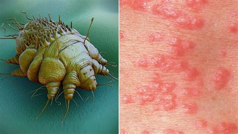 scabies  symptoms pictures  rash  treatment