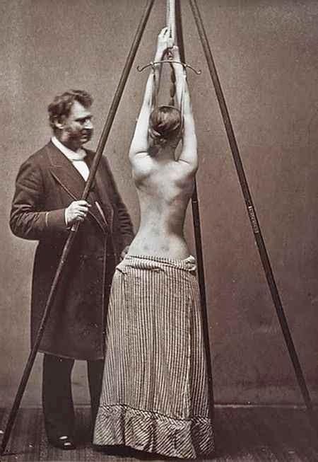 fotos antiguas espeluznantes espeluznantes fotograf 237 as de antiguos tratamientos m 233 dicos