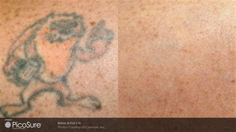 tattoo removal richmond removal melbourne richmond skin laser