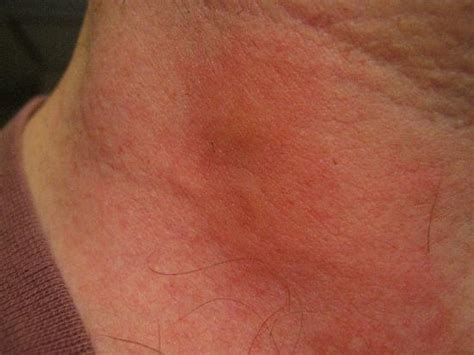 bed bug bites on neck 301 moved permanently
