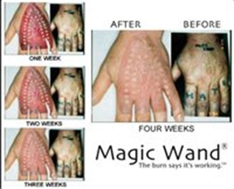 magic wand tattoo removal januari 2017