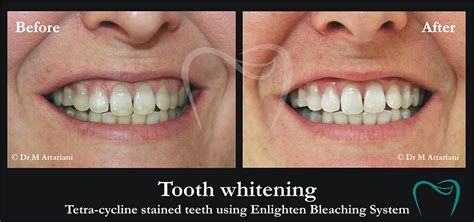 tooth whitening northamptonshire  orchid dental centre