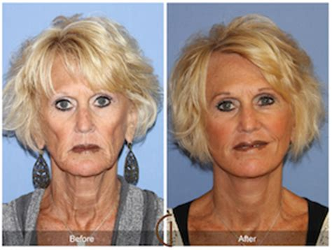 celebrity neck lift today s best cosmetic surgery review site realself com