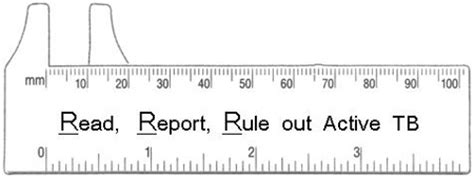printable ppd ruler tuberculosis tb middlesex london health unit