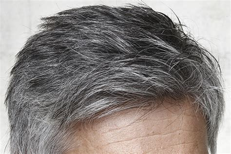 how to tteat grey hair for black women 4 frequently reported scalp problems that occur due to