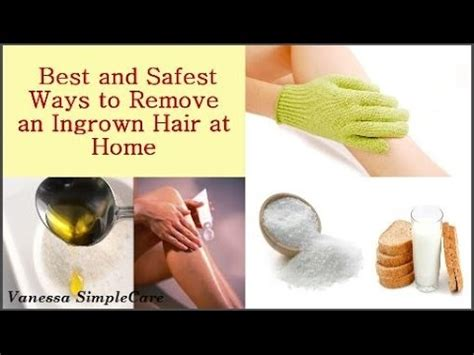 best way to draw out an ingrown hair how to remove an ingrown hair safely at home naturally