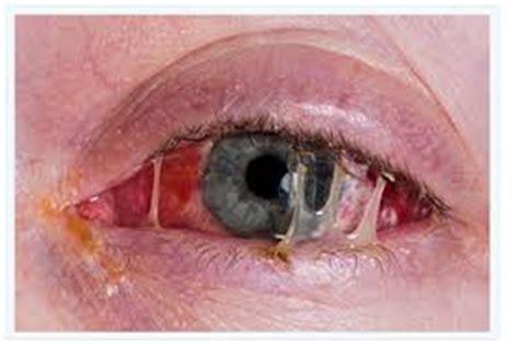 can you get pink eye from a pink eye dr adam stewart