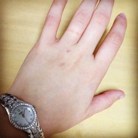 Wedding Ring Nickel Allergy by Nickel Allergy Thehomebakerlife
