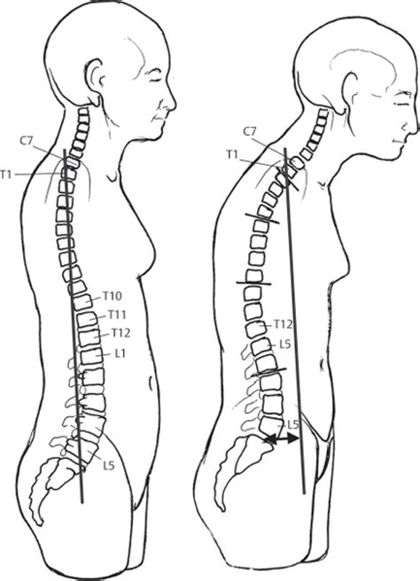 Meaning Of Plumb Line by Scoliosis Musculoskeletal Key