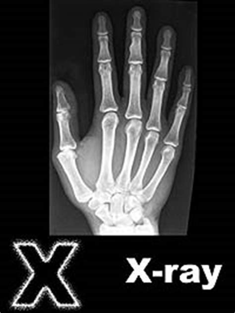 free printable x rays x is for x ray coloring page