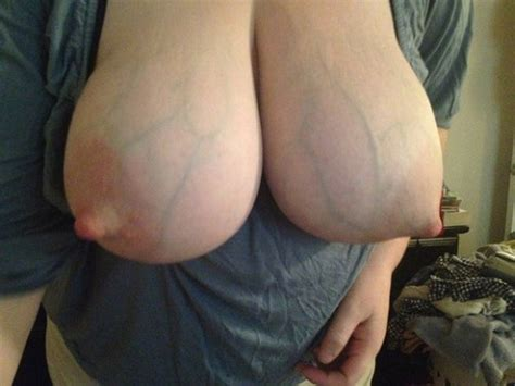Engorged Lactating Breasts