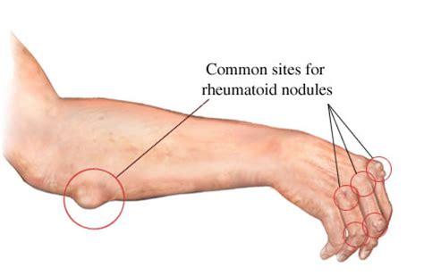 sedere molle العقد الرثيانية rheumatoid nodules حكيم