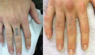 tattoo removal toowoomba ipl skin treatment ipl hair removal beauty salon toowoomba
