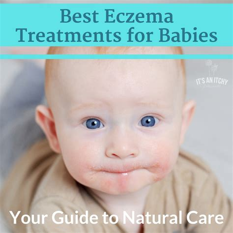 eczema best treatment creams for eczema in babies all the best in 2018