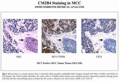 perinuclear dot pattern of staining with ck20 merkel cell polyomavirus the chang moore lab