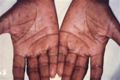 syphilis rash on hands what problems can occur in people with syphilis