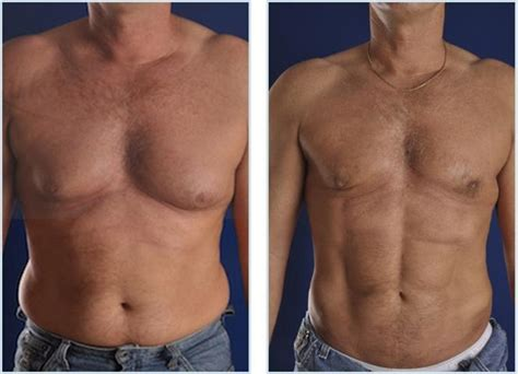 Bust With Coolsculpting by What Is Vaser Hi Def 174 Liposculpture