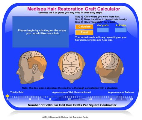 hair transplant calculator hair calculator top hair transplant center jaipur delhi