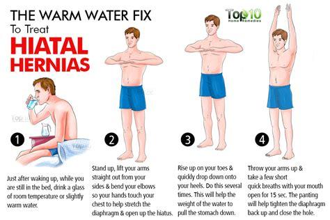 home remedies  hiatal hernias top  home remedies
