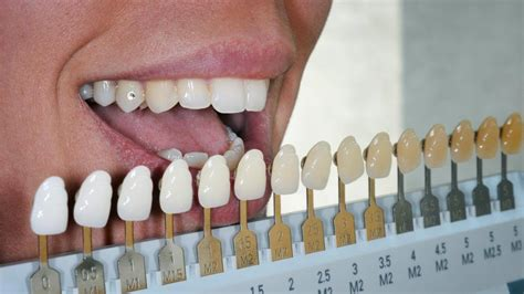 teeth color chart how to prepare for dental implant and what to expect