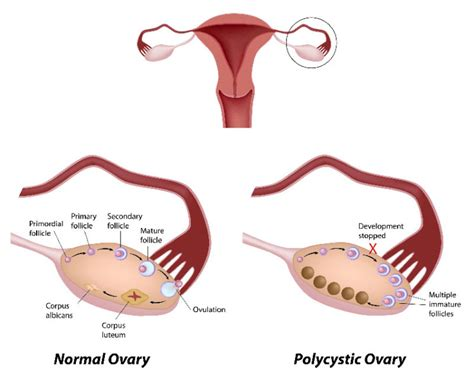 Small Camp Floor Plans by Polycystic Ovarian Syndrome Symptoms Best Herbal Health