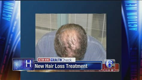 latest news and research on hair loss new hair loss treatment uses patient s own blood 6abc com