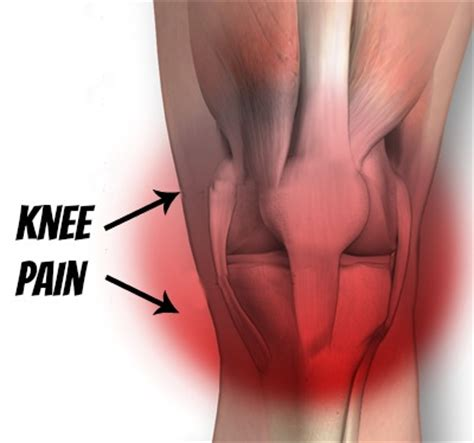 On Interior Of Knee by Get Fit Mummy More Knee Drama The Mad House Of
