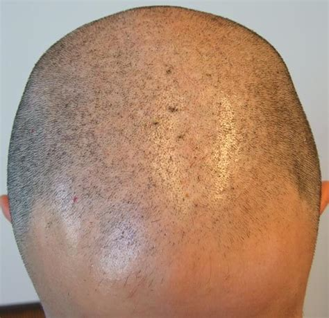 fue hair transplant reviews fue hair transplant review 3800 hairs at hairpalace clinic