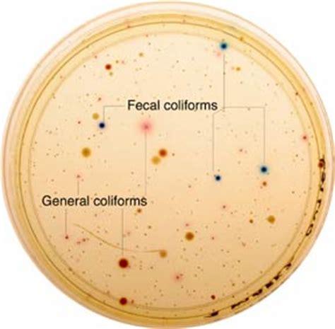 Stool Test Bacteria e easygel