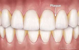 home remedies for plaque beat the 21st century plague 13 home remedies to