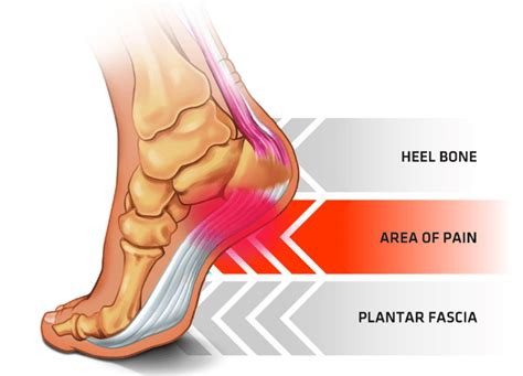 bouncing back from plantar fasciitis