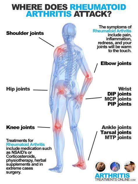 arthritis symptoms 54 best rheumatoid arthritis images on health rheumatoid arthritis and