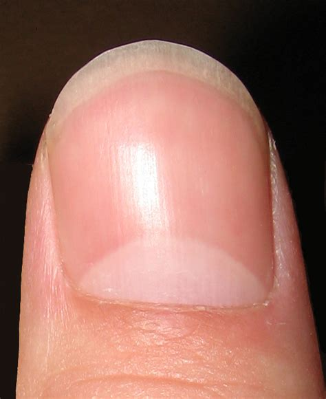 Finger Nail by Lunula Anatomy