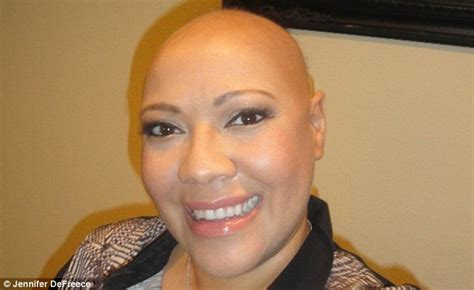 photos of women with no hair living with alopecia and all the misconceptions that come