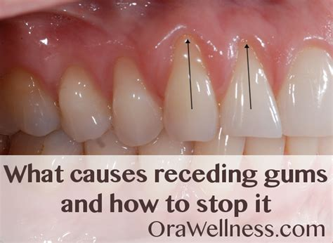 what causes receding gums and how to stop it orawellness