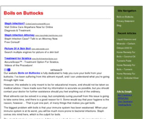Boilsonbuttocks.com: Boils on Buttocks: Treatment | Home ... How To Treat Boils On Buttocks At Home