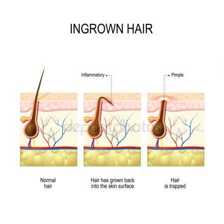 how to stop ingrown stomach hairs portfolio edesignua stock photos illustrations and