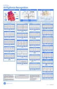 1000 images about cardiac nursing on pinterest cardiology ekg