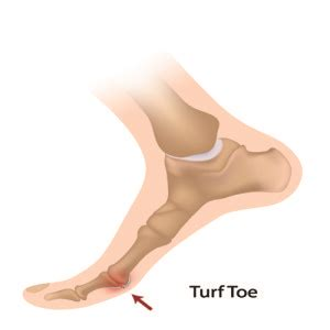 toe diagram turf toe the back and clinic specialist