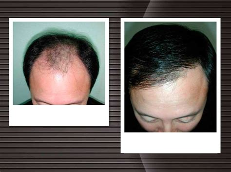 dhi hair transplant reviews dhi hair transplant reviews dhi hair transplant reviews