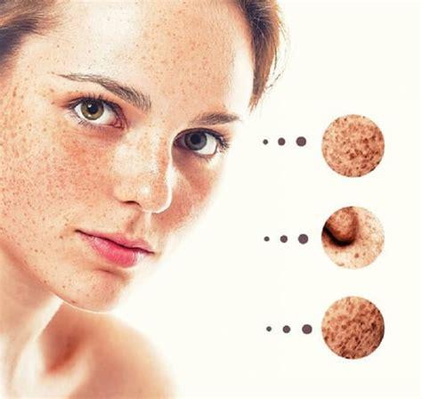 la piel de la como eliminar las manchas de la piel con remedios caseros