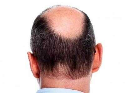 jual obat rambut rontok pitak mengatasi masalah rambut yg tipis cara menumbuhkan rambut pitak