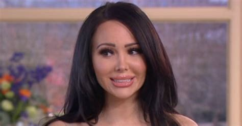Diane Is Terrified Of Plastic Surgery by Plastic Surgery Addict Is Terrified Bum Implants Could