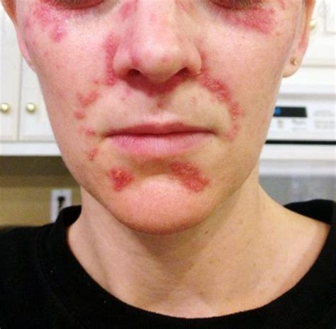 Detox Rash After by Eczema Topical Steroid Addiction Health Healing