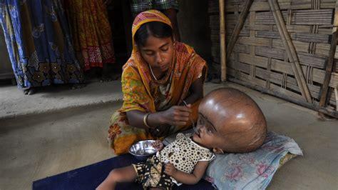 indien maedchen mit riesigem wasserkopf darf auf rettung