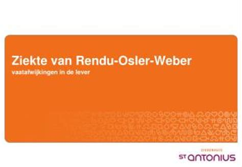 Rendu Osler Weber Report And Literature Review by Ppt Hereditary Hemorrhagic Telangiectasia Osler Weber Rendu Powerpoint Presentation