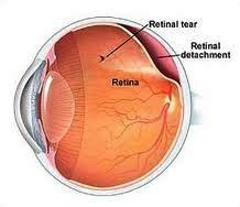 Harga Obat Sehat Mata Di Apotik harga obat ablasio retina di apotik kimia farma asli dan