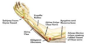 hitting nerve in elbow cubital tunnel syndrome treatment exercises study