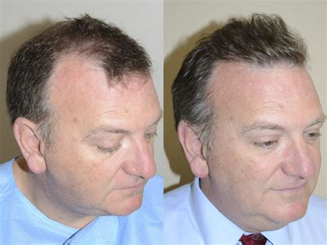 hair transplant before and after hair transplants for men photos miami fl patient 40182